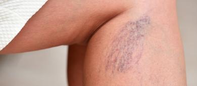 Por que as varizes surgem e como prevenir?