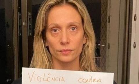 """Luísa Mell acusa ex-marido de ameaçá-la: """"Sou forte e vou lutar"""""""