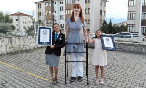 Mulher viva mais alta do mundo é uma turca de 24 anos