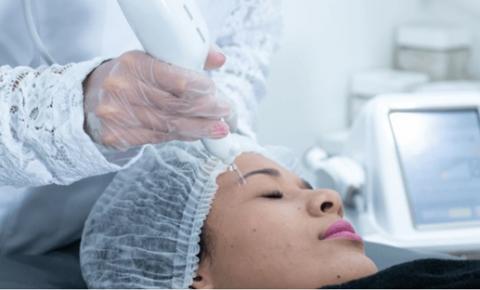 Tratamento com a tecnologia Raytrace possibilita rejuvenescimento facial sem cortes